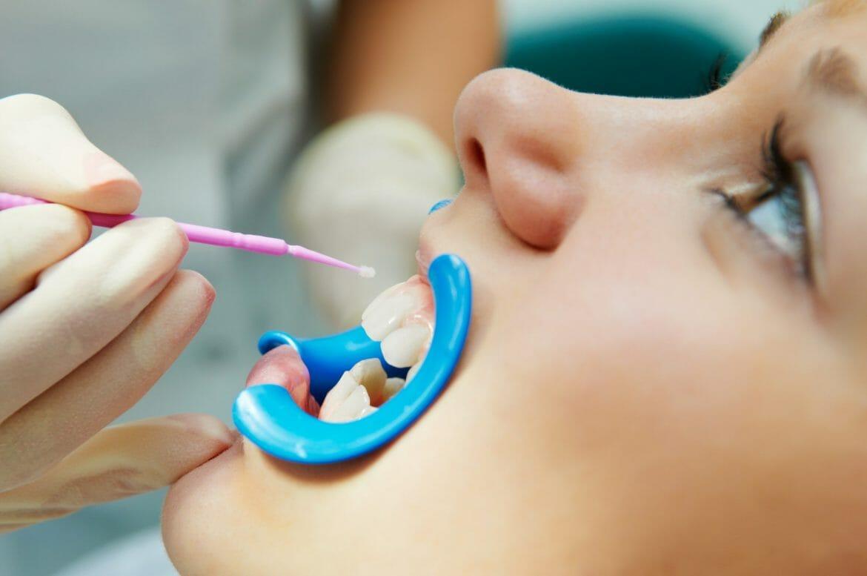 Child getting dental sealant